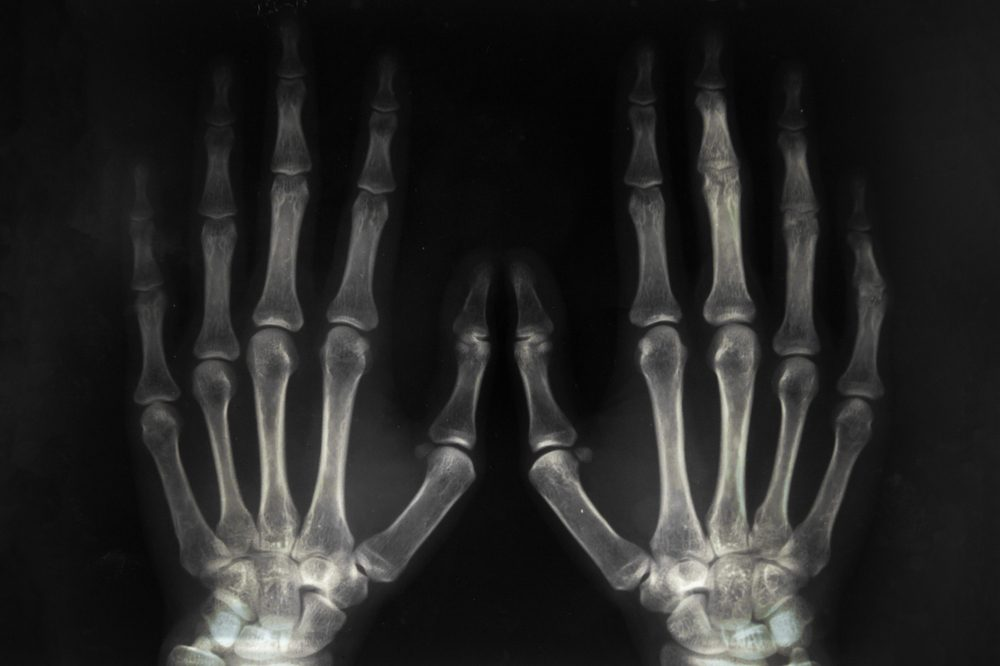 rheumatoid diseases represented by xray of arthritic hands