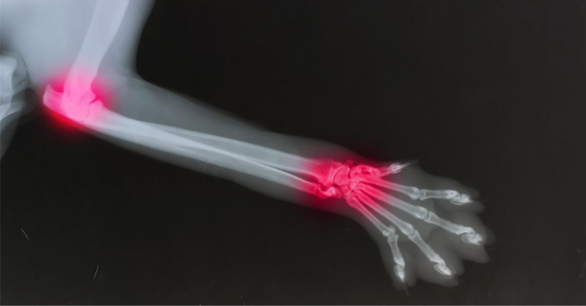 treating canine arthritis represented by xray of arthritic dog