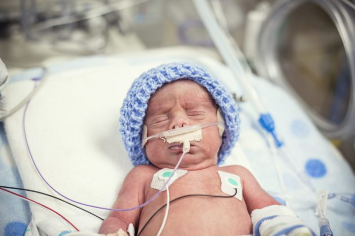 Cannabis Seizure Trial For Newborns With Brain Injury at Birth